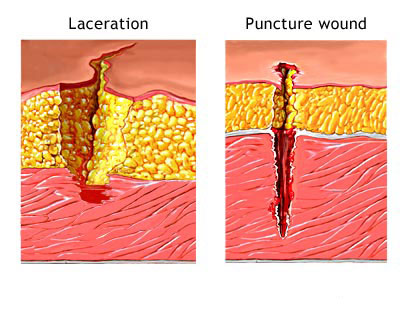 Difference between a Laceration & Puncture wound