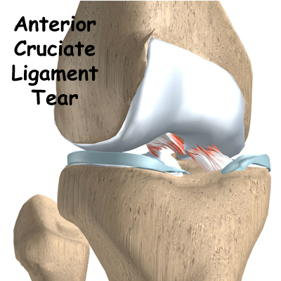 Anterior Cruciate Ligament Tear Acl Singapore Sports And Orthopaedics Clinic