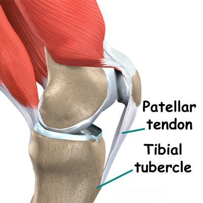 patellar_tendonitis
